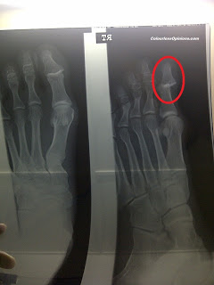 X-ray dislocated big toe distal interphalangeal joint